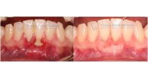 A patient's gums before and after a gum graft.