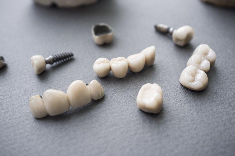 A series of dental restorations.