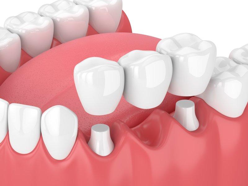 A diagram of a dental bridge.